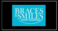 Braces Smiles